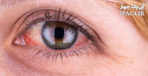 به چه دلیل چشم ها قرمز می شوند؟